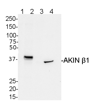 western blot detection using anti-AKIN beta-1 antibodies