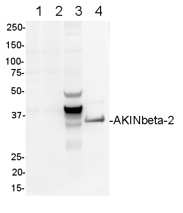 western blot detection using anti-AKINbeta-2 antibodies