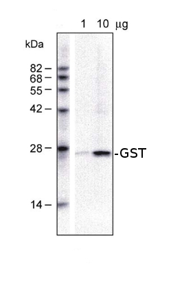 western blot detection using anti-GST antibodies