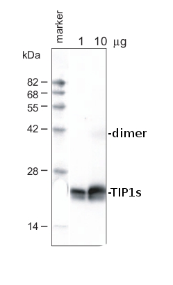 western blot using anti-TIP1s antibodies