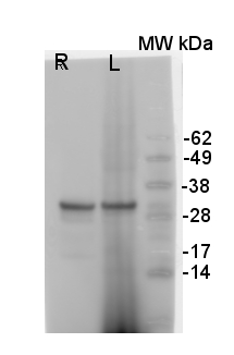 western blot using goat and-V-ATPase antibodies