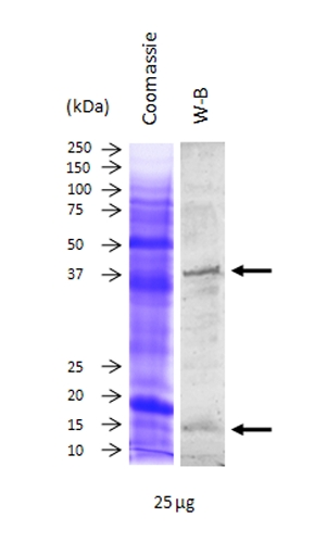 western blot using hen anti-Cu Zn SOD antibody
