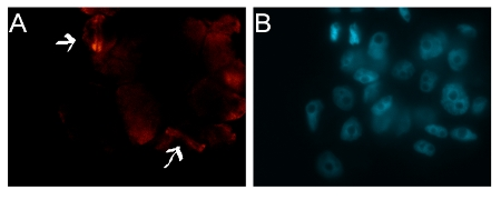 detection of plant tubulin in Arabidopsis suspenstion cells