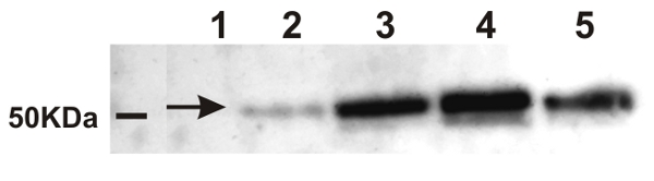 alpha-Ramy detection in rice using western blot