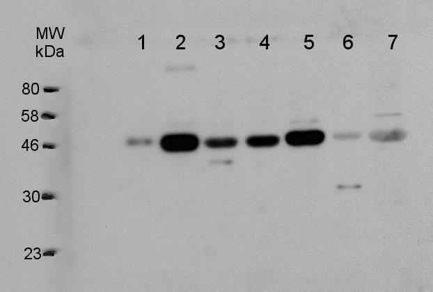 western blot using VTC2 antibodies