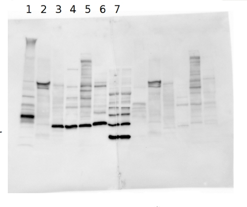 western blot using anti-DSP antibodies