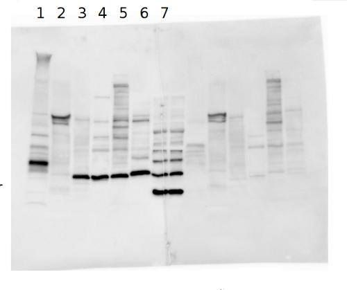 western blot using anti-DSP antibodies