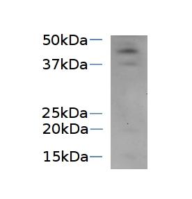 western blot using anti-SVR4-like antibodies