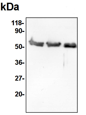 Western blot using anti-SHMT antibodies