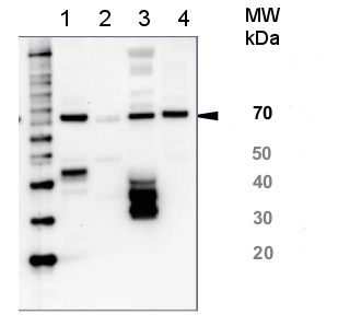 western blot using anti-HSP70 global antibody