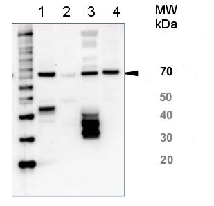 western blot using anti-HSP70 global antibody