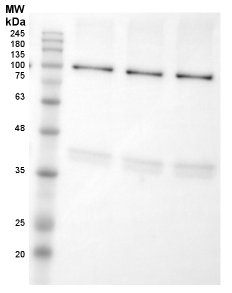 Western blot using anti-LOX antibodies on potato tuber flesh
