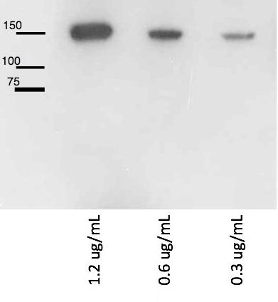 western blot using anti-LRIG1 rabbit antibody