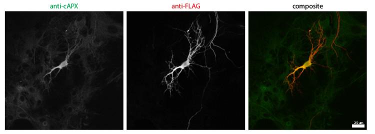 immunolocalization in high expressing neurons