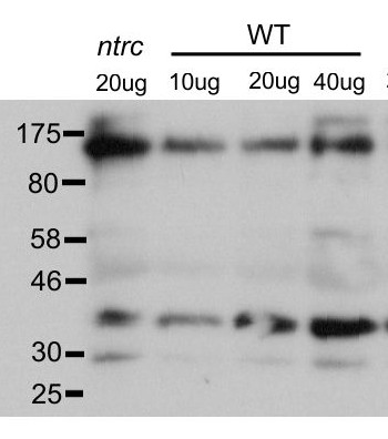 western blot using anti-PRK antibodies