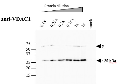 western blot using anti-VDAC1 antibodies