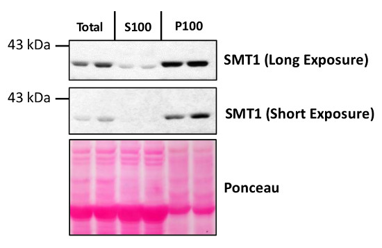 Western blot using anti-SMT1 antibodies