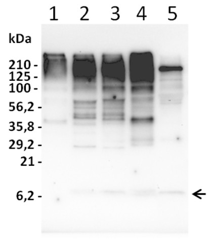 Western blot using anti-ubiquitin antibodies