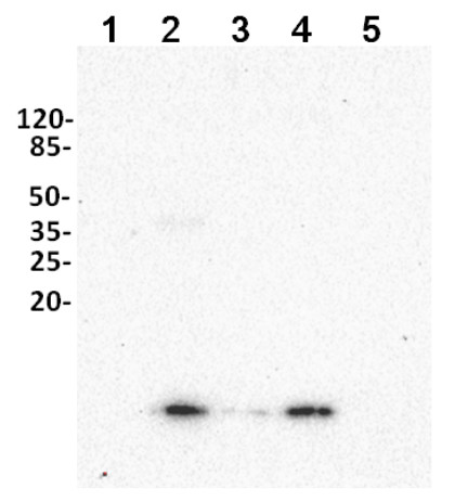 Western blot using anti-ubiqutin antibodies