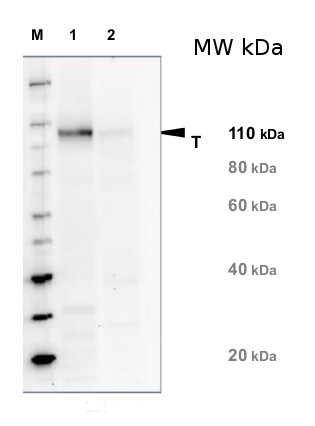 western blot with anti-NR antibodies