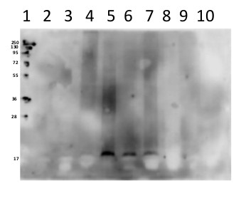 western blot using anti-V ATPase subunit c antibodies