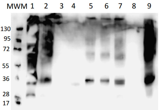 western blot using anti-PIP global antibodies