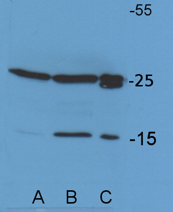 western blot using anti-Chlamydomonas Lhcb5 antibodies
