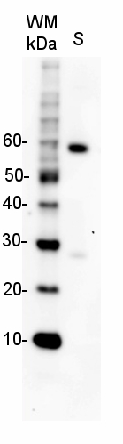 western blot using secondary antibody rabbit anti-goat immunoglobulins, HRP conjugated