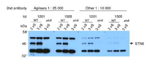 western blot using anti-STN( antibodies