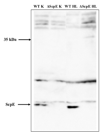 western blot using HilD (ScpE) antibody in Synechocystis