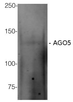 western blot using anti-AGO5 antibodies on Arabidopsis thaliana