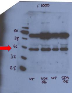 western blot using anti-STM antibodies