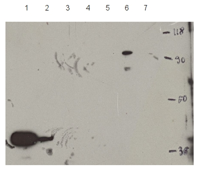 western blot detection of HDT1 (HD2A)