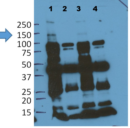 western blot using anti-EIN2 antibodies