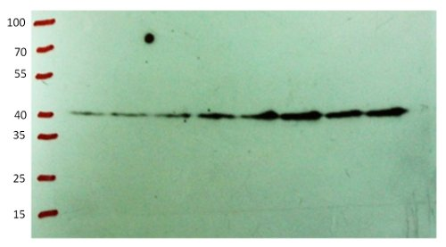 western blot using anti-CHS antibodies