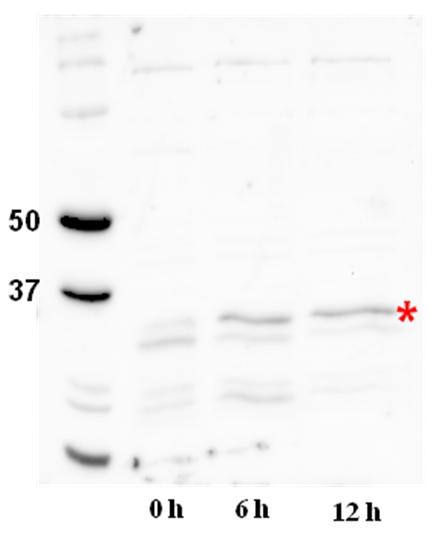 western blot using  CrDGAT2 antibodies