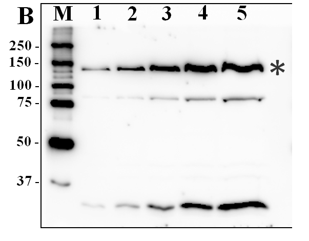 western blot using anti-PADT antibody