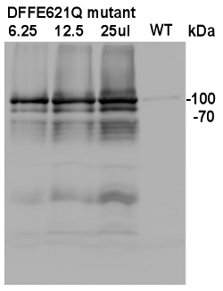 western blot using anti-HA tag antibody on plant recombinant protein