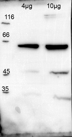 western blot using anti-hexokinase antibodies