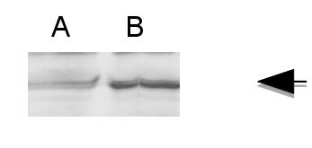 western blot using anti-FMR antibody