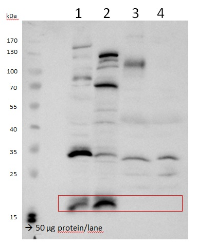 western blot using anti-VPS29 antibodies