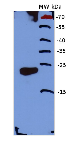 western blot using anti/calcineurin hand motiff antibody