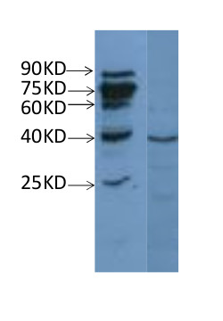western blot using anti-NAD(P)H-quinone oxidoreductase subunit H, chloroplastic  antibodies
