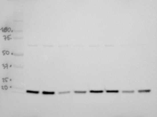 Western blot using anti-LEA4-5 antibodies