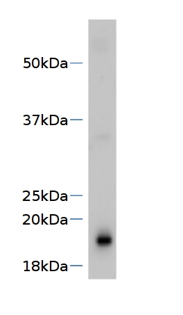 western blot using anti-SVR4 antibodies