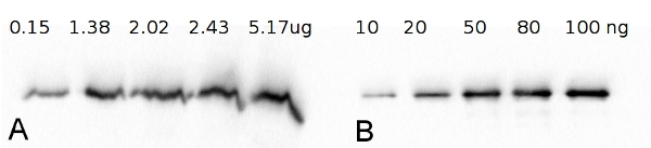 western blot using anti-FBA antibodies