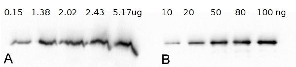 western blot using anti-FBA antibodies