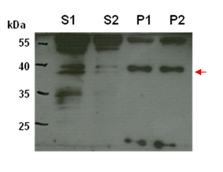 western blot detection using CTP6 antibodies