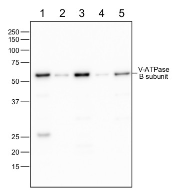 western blot using anti-V-ATPase subunit B antibodies