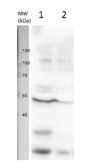 western blot using anti-U1 snRNP protein A | U1 small nuclear ribonucleoprotein A antibodies